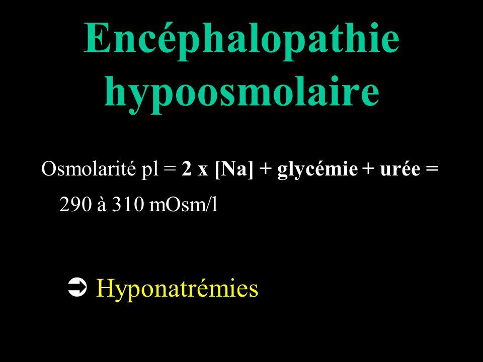 Encéphalopathie hypoosmolaire Osmolarité pl = 2 x [Na] + glycémie + urée = 290 à 310 mOsm/l Hyponatrémies