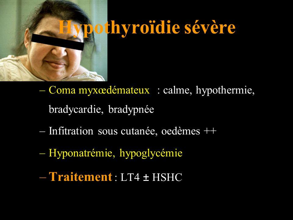 Hypothyroïdie sévère –Coma myxœdémateux : calme, hypothermie, bradycardie, bradypnée –Infitration sous cutanée, oedèmes ++ –Hyponatrémie, hypoglycémie –Traitement : LT4 ± HSHC