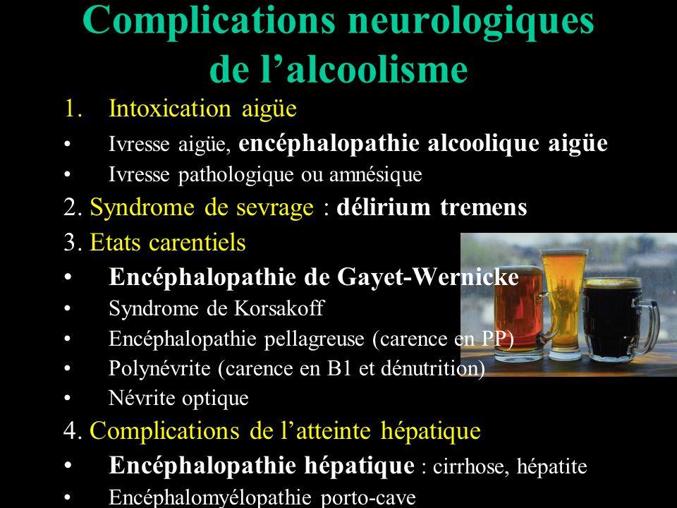 Complications neurologiques de lalcoolisme 1.Intoxication aigüe Ivresse aigüe, encéphalopathie alcoolique aigüe Ivresse pathologique ou amnésique 2.