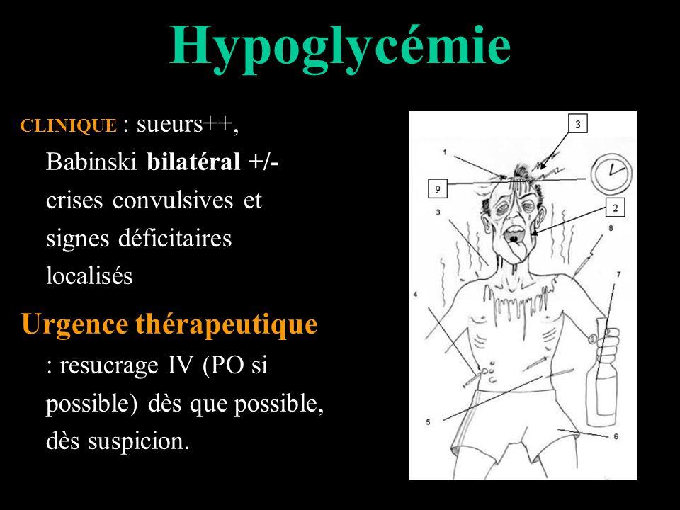 Hypoglycémie CLINIQUE : sueurs++, Babinski bilatéral +/- crises convulsives et signes déficitaires localisés Urgence thérapeutique : resucrage IV (PO si possible) dès que possible, dès suspicion.