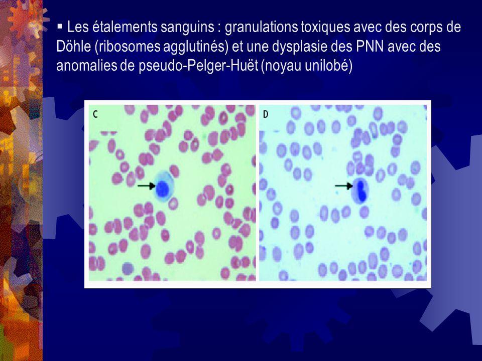 Les étalements sanguins : granulations toxiques avec des corps de Döhle (ribosomes agglutinés) et une dysplasie des PNN avec des anomalies de pseudo-P