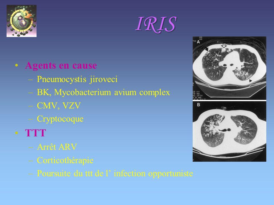 IRIS Agents en cause –Pneumocystis jiroveci –BK, Mycobacterium avium complex –CMV, VZV –Cryptocoque TTT –Arrêt ARV –Corticothérapie –Poursuite du ttt de l infection opportuniste