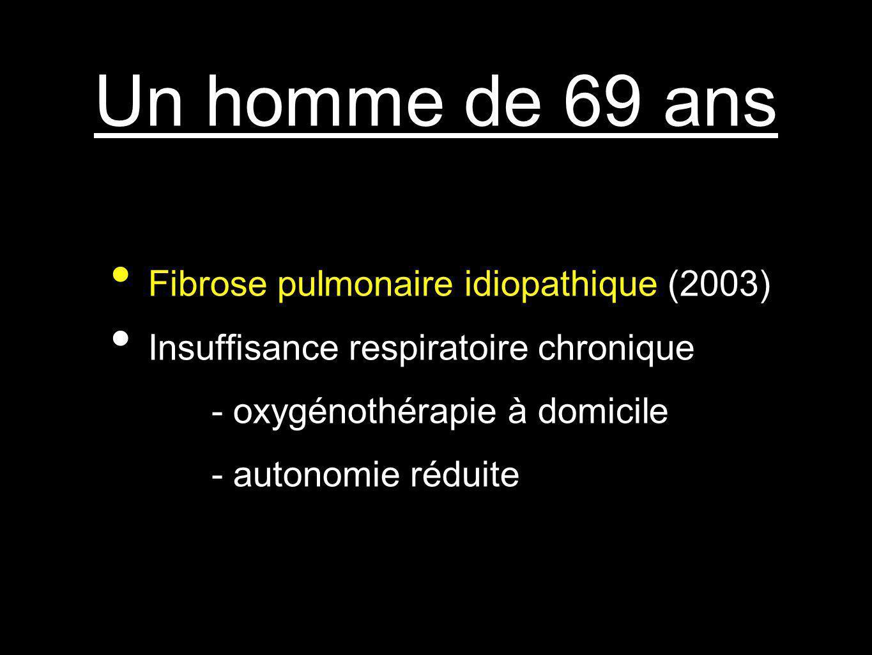 Un homme de 69 ans Fibrose pulmonaire idiopathique (2003) Insuffisance respiratoire chronique - oxygénothérapie à domicile - autonomie réduite