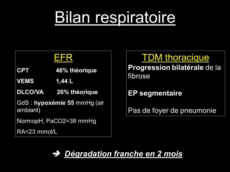 Bilan respiratoire Dégradation franche en 2 mois EFR CPT 46% théorique VEMS 1,44 L DLCO/VA 26% théorique GdS : hypoxémie 55 mmHg (air ambiant) NormopH, PaCO2=38 mmHg RA=23 mmol/L TDM thoracique Progression bilatérale de la fibrose EP segmentaire Pas de foyer de pneumonie
