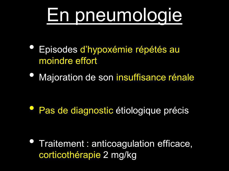 En pneumologie Episodes dhypoxémie répétés au moindre effort Majoration de son insuffisance rénale Pas de diagnostic étiologique précis Traitement : anticoagulation efficace, corticothérapie 2 mg/kg