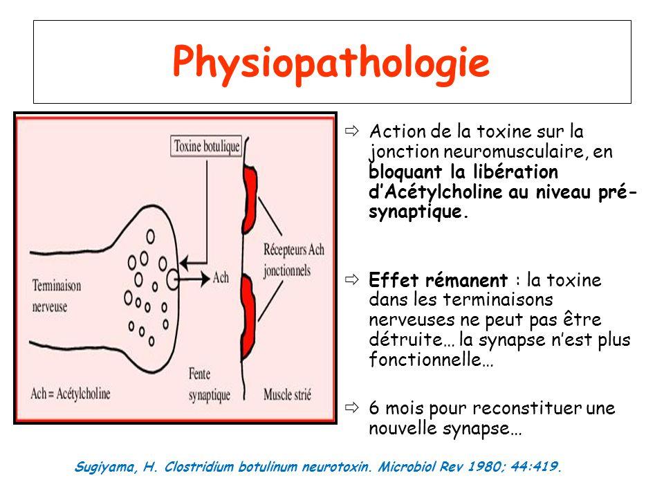 Physiopathologie Action de la toxine sur la jonction neuromusculaire, en bloquant la libération dAcétylcholine au niveau pré- synaptique. Effet rémane