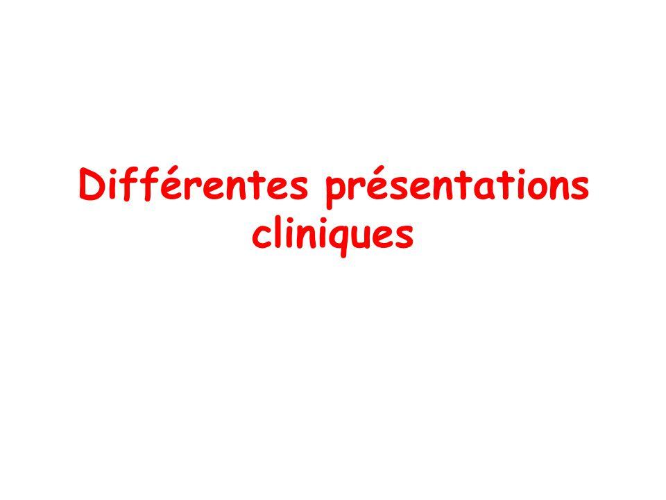 Différentes présentations cliniques