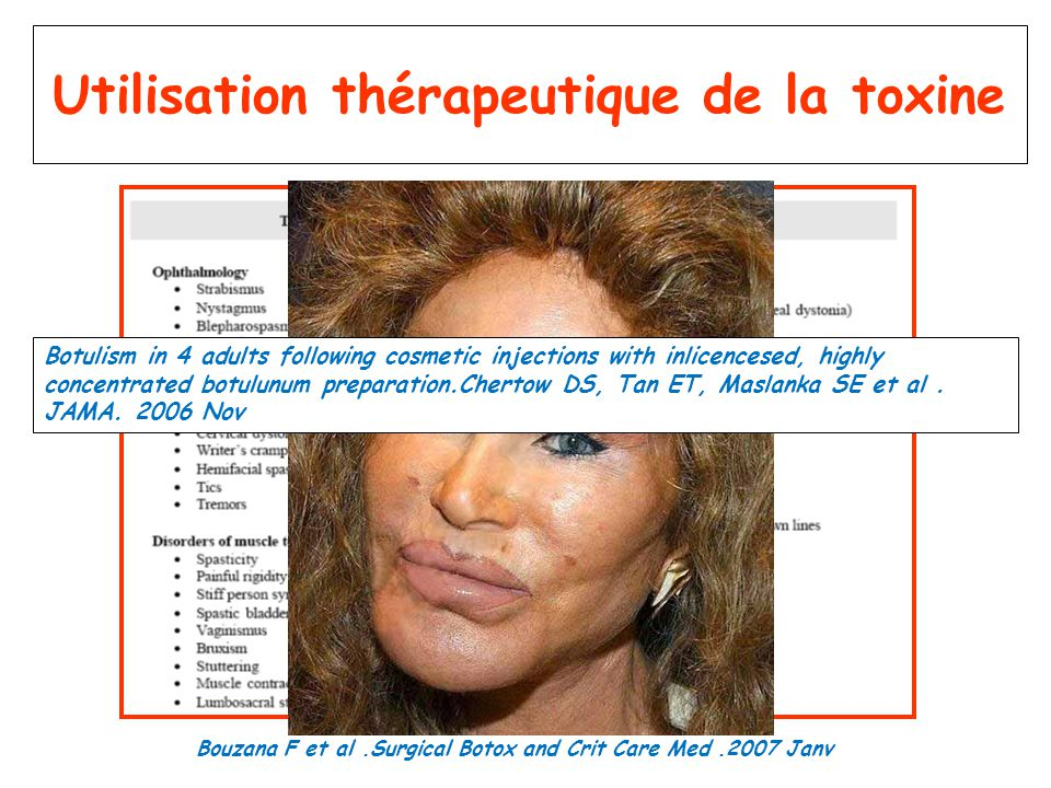 Utilisation thérapeutique de la toxine Botulism in 4 adults following cosmetic injections with inlicencesed, highly concentrated botulunum preparation