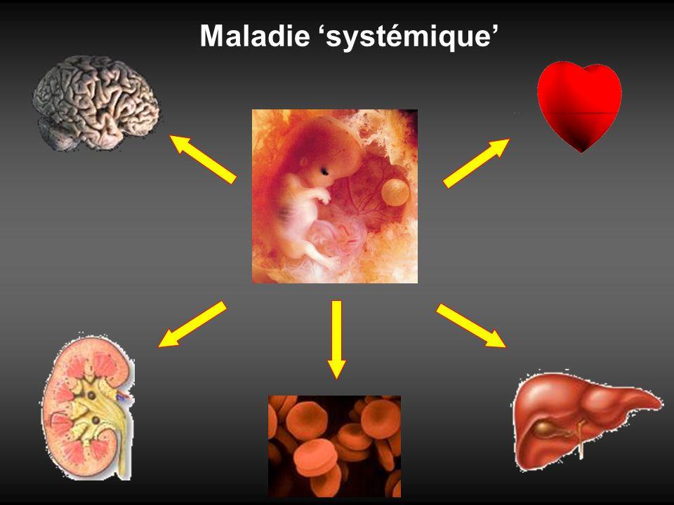 Maladie systémique