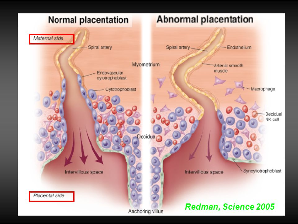 Deux phases: Hypoxie placentaire Syndrome Maternel