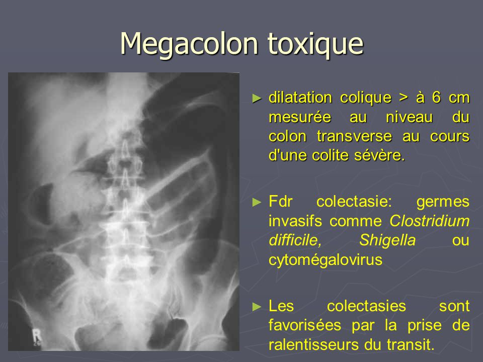 Megacolon toxique dilatation colique > à 6 cm mesurée au niveau du colon transverse au cours d'une colite sévère. Fdr colectasie: germes invasifs comm