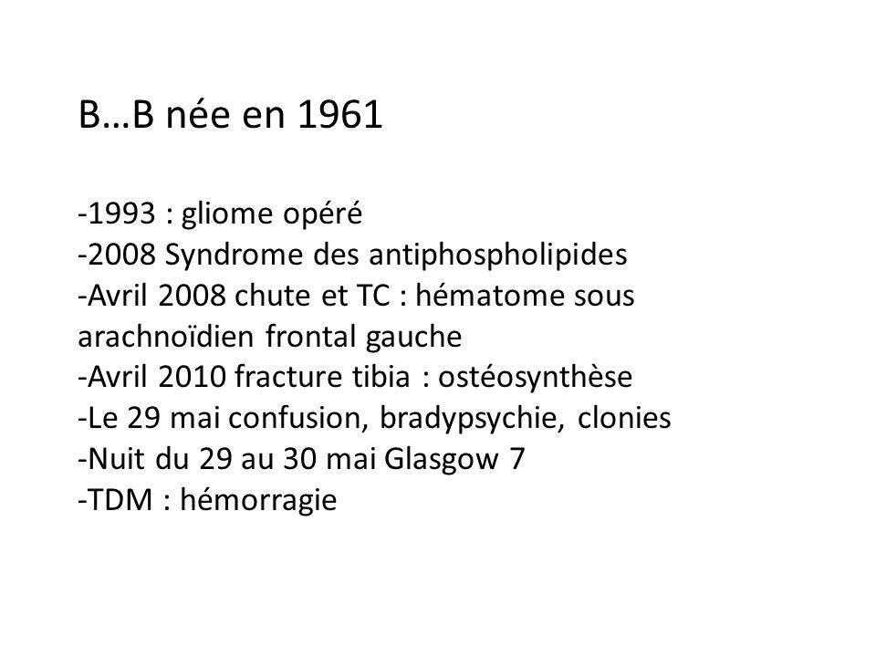 B…B née en 1961 -1993 : gliome opéré -2008 Syndrome des antiphospholipides -Avril 2008 chute et TC : hématome sous arachnoïdien frontal gauche -Avril 2010 fracture tibia : ostéosynthèse -Le 29 mai confusion, bradypsychie, clonies -Nuit du 29 au 30 mai Glasgow 7 -TDM : hémorragie