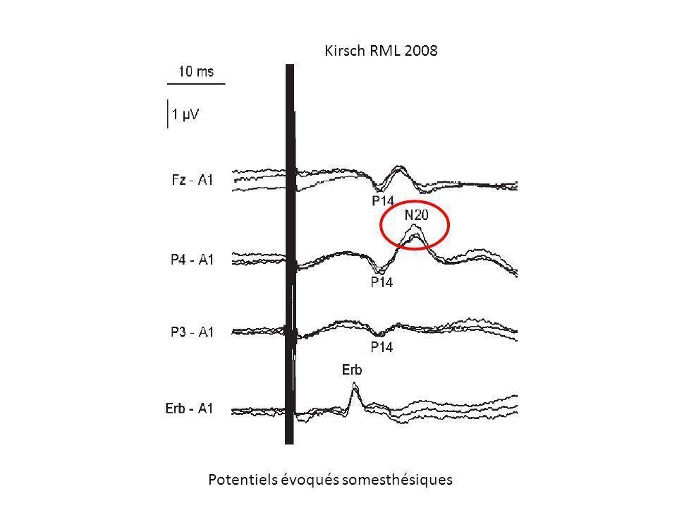 Potentiels évoqués somesthésiques Kirsch RML 2008