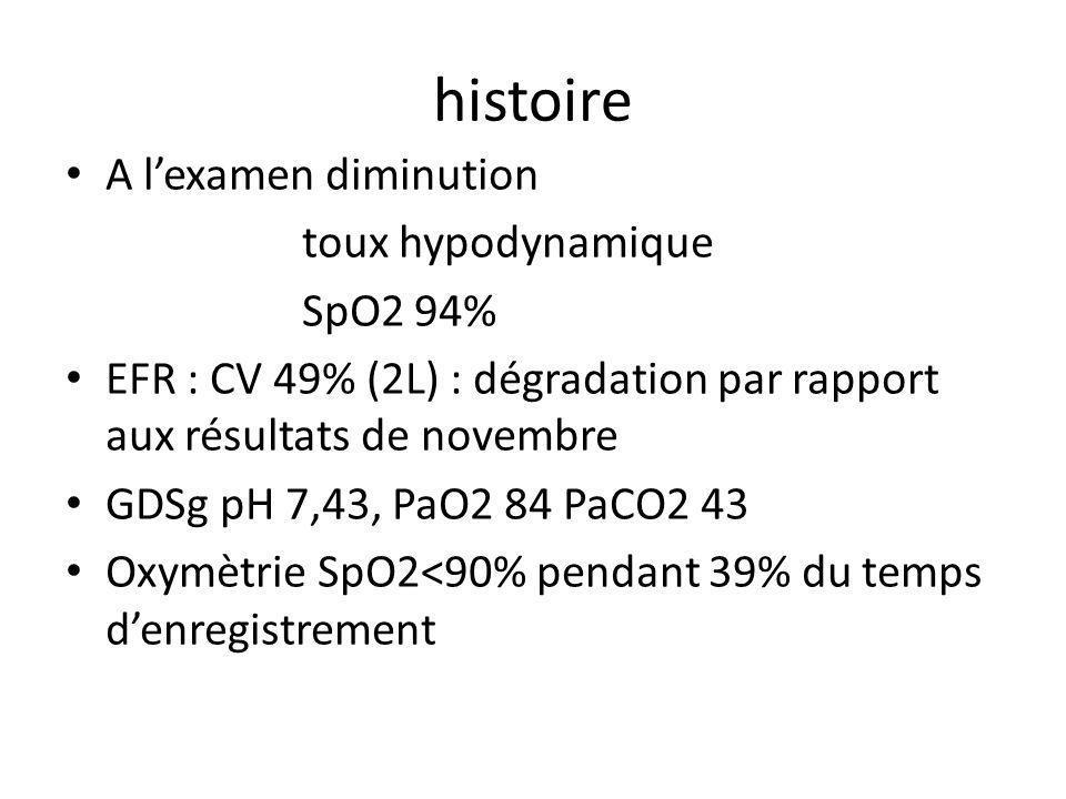 histoire A lexamen diminution toux hypodynamique SpO2 94% EFR : CV 49% (2L) : dégradation par rapport aux résultats de novembre GDSg pH 7,43, PaO2 84 PaCO2 43 Oxymètrie SpO2<90% pendant 39% du temps denregistrement