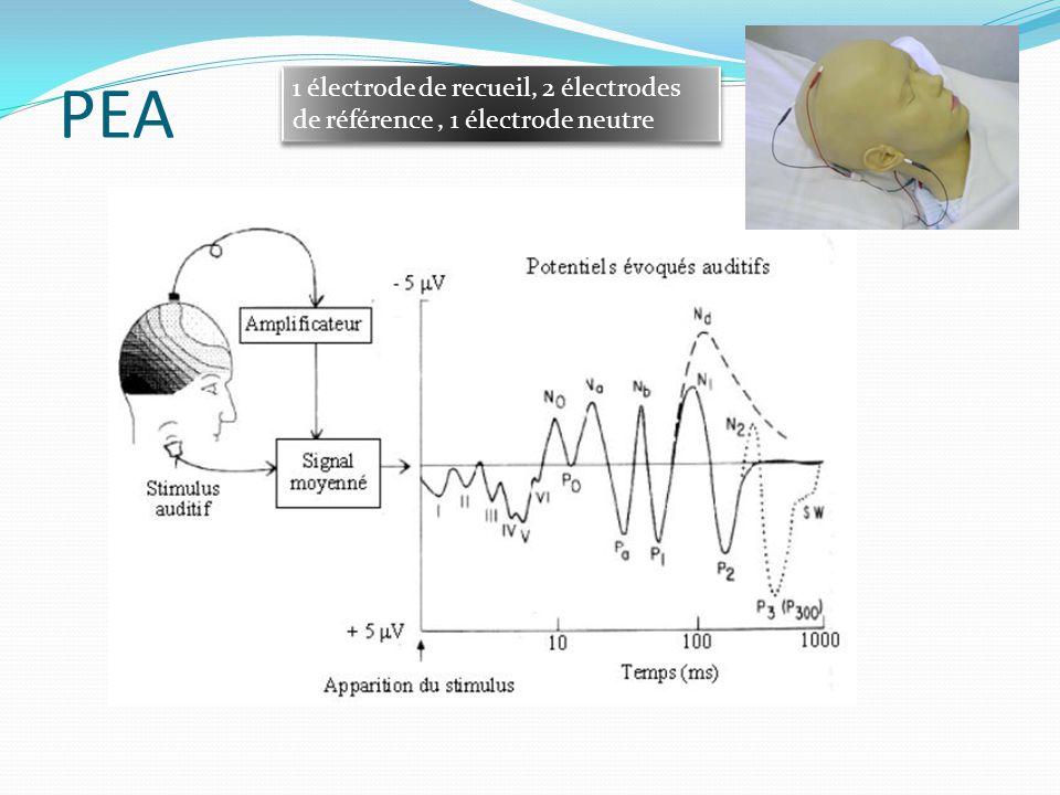 PEA Composantes à latence brève PEAprecoces I : nerf auditif II : noyau cochléaire III : complexe olivaire supérieur IV : région pontique V : colliculus inférieur VI : corps genouillé médian Composantes à latence moyenne : No à Nb (origine temporale) : PEALM: cortex primaire Composantes à longue latence : P1 à N2 (origine fronto- centrale) :PEA tardifs: cortex associatif
