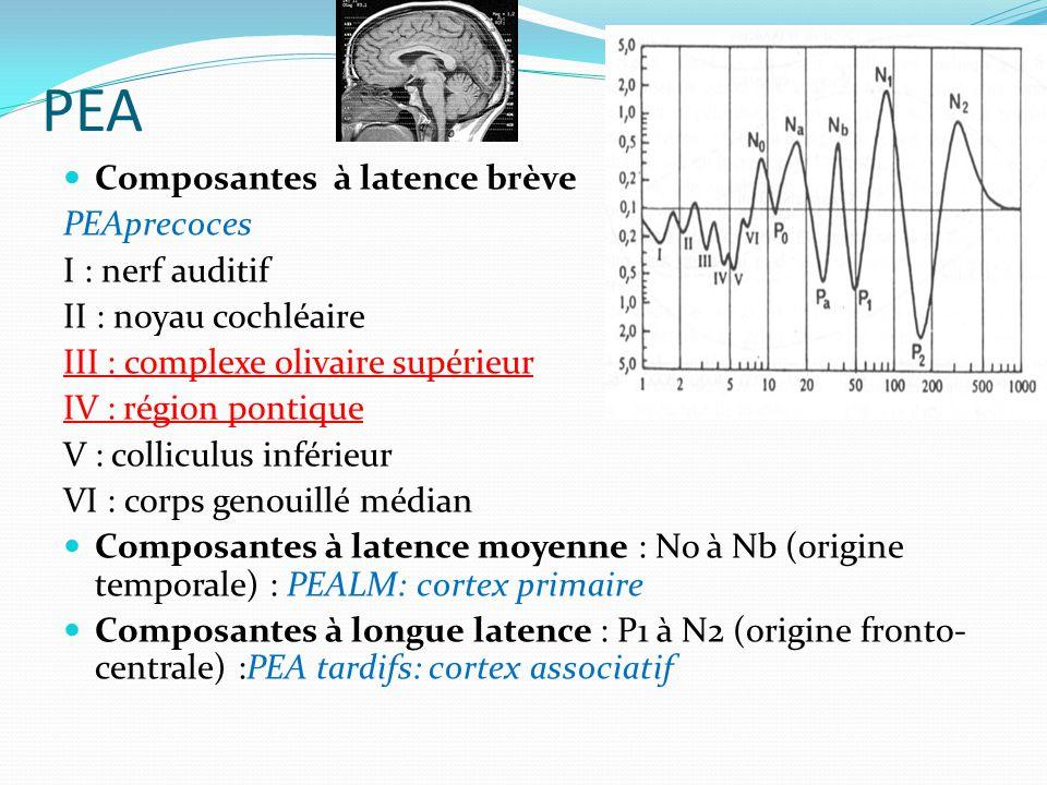 PEA Composantes à latence brève PEAprecoces I : nerf auditif II : noyau cochléaire III : complexe olivaire supérieur IV : région pontique V : collicul