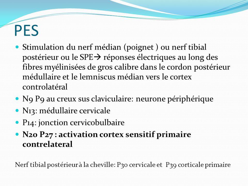 PES Stimulation du nerf médian (poignet ) ou nerf tibial postérieur ou le SPE réponses électriques au long des fibres myélinisées de gros calibre dans