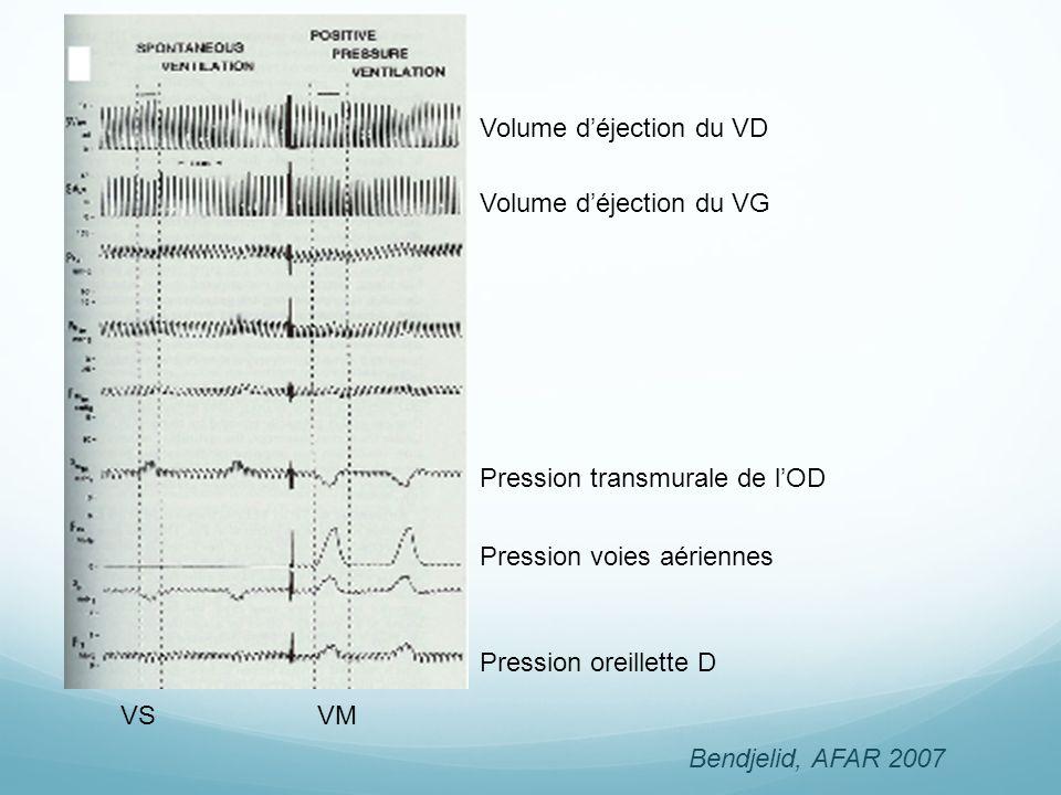 Volume déjection du VD Volume déjection du VG VSVM Pression oreillette D Pression voies aériennes Pression transmurale de lOD Bendjelid, AFAR 2007