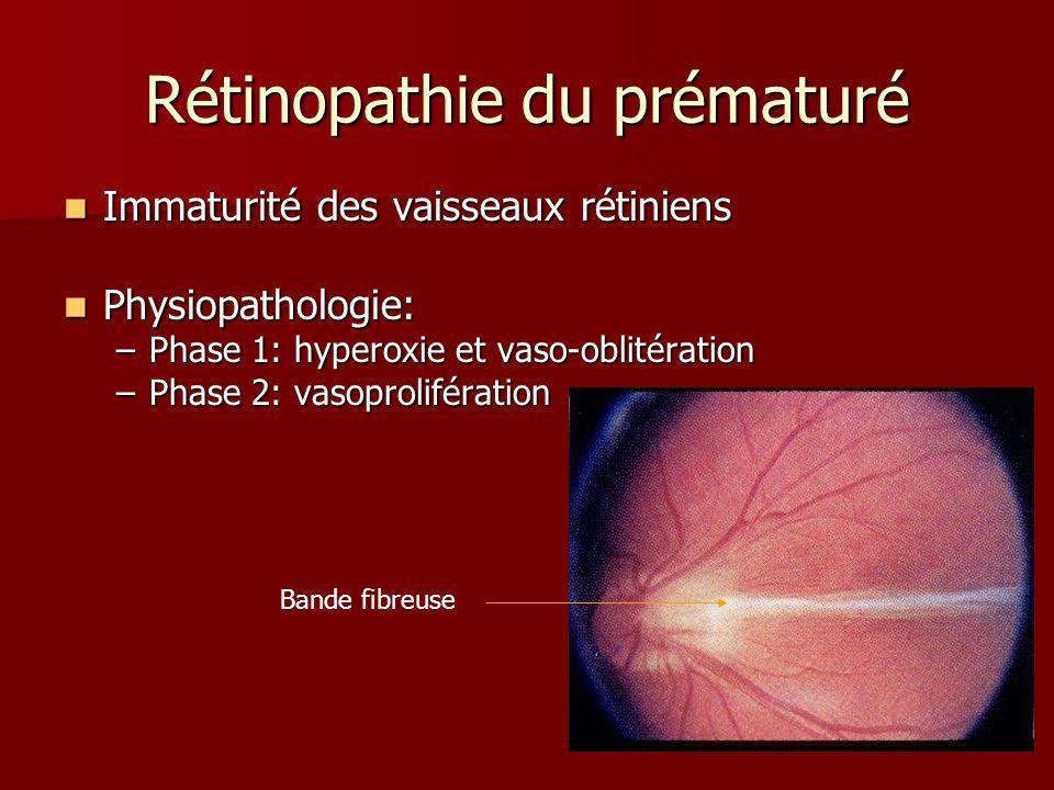 Rétinopathie du prématuré Immaturité des vaisseaux rétiniens Immaturité des vaisseaux rétiniens Physiopathologie: Physiopathologie: –Phase 1: hyperoxi