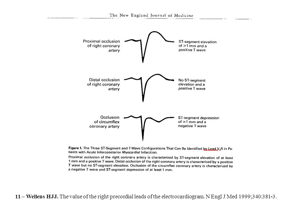 11 – Wellens HJJ. The value of the right precordial leads of the electrocardiogram. N Engl J Med 1999;340:381-3.