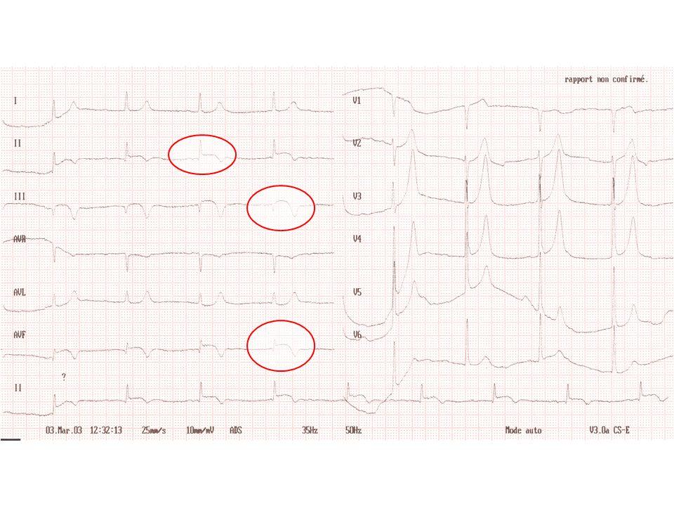 INFARCTUS VENTRICULE DROIT CAS CLINIQUE EVOLUTION –Sortie de réanimation 10 jours après son admission –ECG: Q DIII, VF et hémibloc antérieur gauche –Echographie confirme infarctus inférieur étendu au VD –6 mois après: TA = 140/90, Nce = 60 /mn, pas de signes dinsuffisance ventriculaire droite, pas de récidive douloureuse thoracique, pas d IVG, dyspnée stade 2 NYHA, normalisation de la fonction rénale.