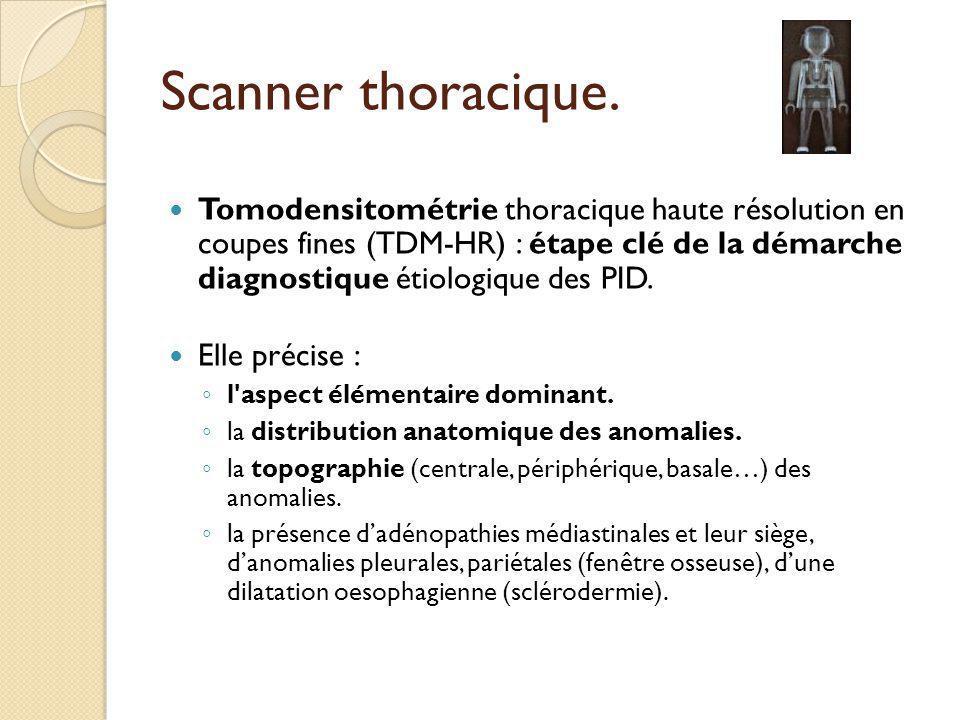 Scanner thoracique. Tomodensitométrie thoracique haute résolution en coupes fines (TDM-HR) : étape clé de la démarche diagnostique étiologique des PID