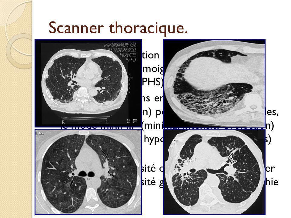 Scanner thoracique. Coupes en expiration pour objectiver un piégeage aérien témoignant dune atteinte bronchiolaire (ex PHS). Les reconstructions en mo