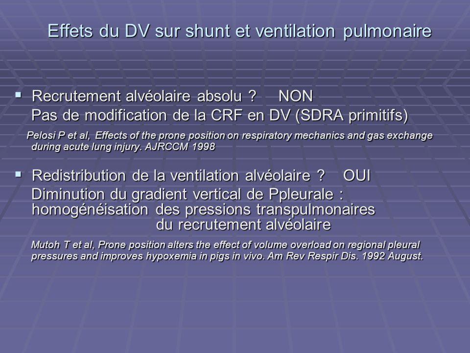 Effets du DV sur shunt et ventilation pulmonaire Recrutement alvéolaire absolu .