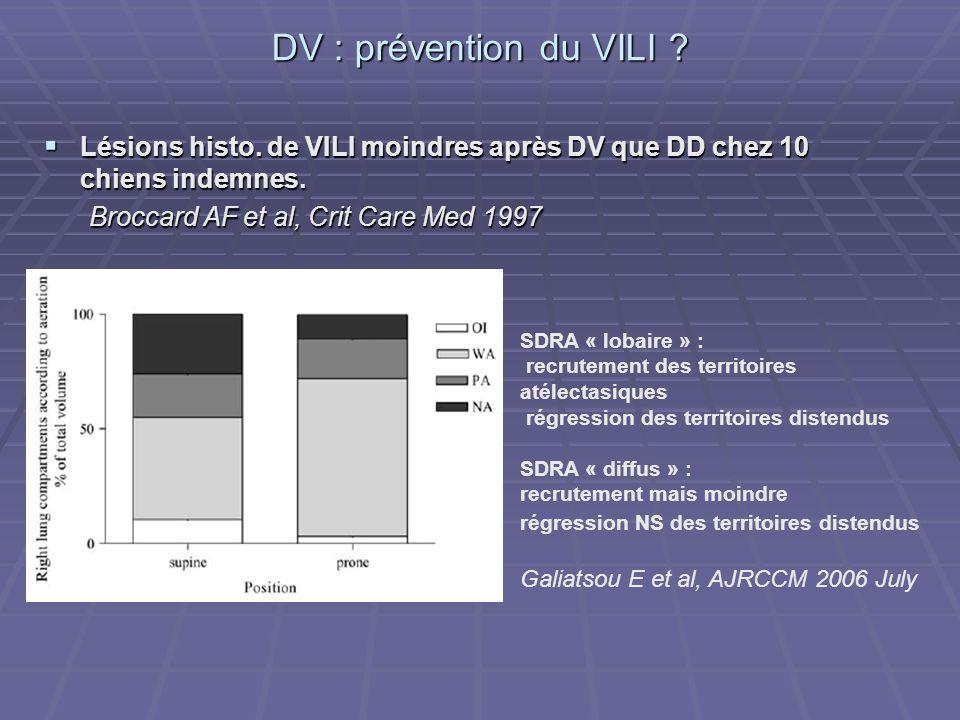 DV : prévention du VILI ? Lésions histo. de VILI moindres après DV que DD chez 10 chiens indemnes. Lésions histo. de VILI moindres après DV que DD che