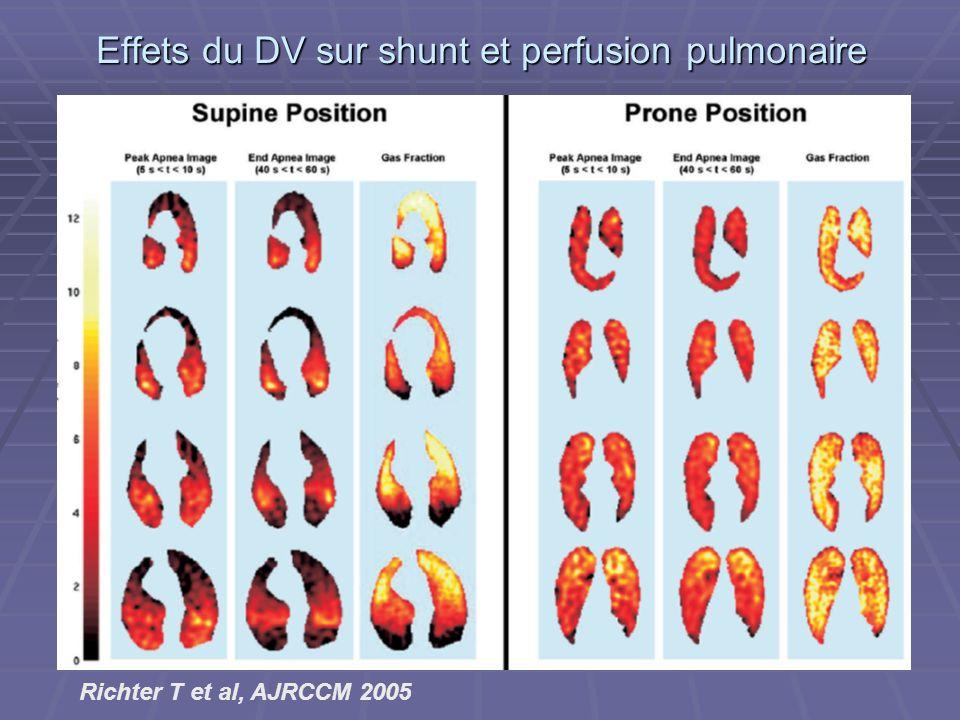 Effets du DV sur shunt et perfusion pulmonaire Richter T et al, AJRCCM 2005