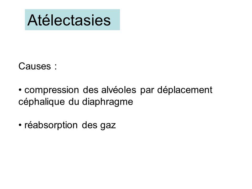 Atélectasies Causes : compression des alvéoles par déplacement céphalique du diaphragme réabsorption des gaz