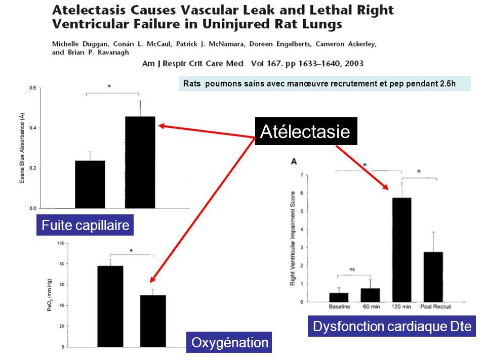 Atélectasie Fuite capillaire Oxygénation Dysfonction cardiaque Dte Rats poumons sains avec manœuvre recrutement et pep pendant 2.5h