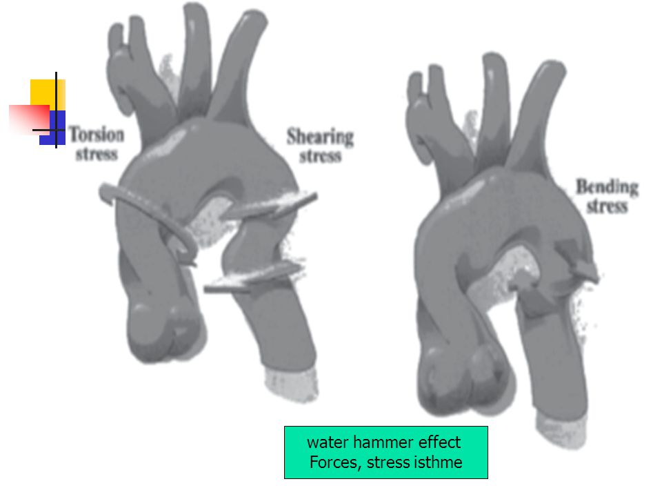water hammer effect Forces, stress isthme