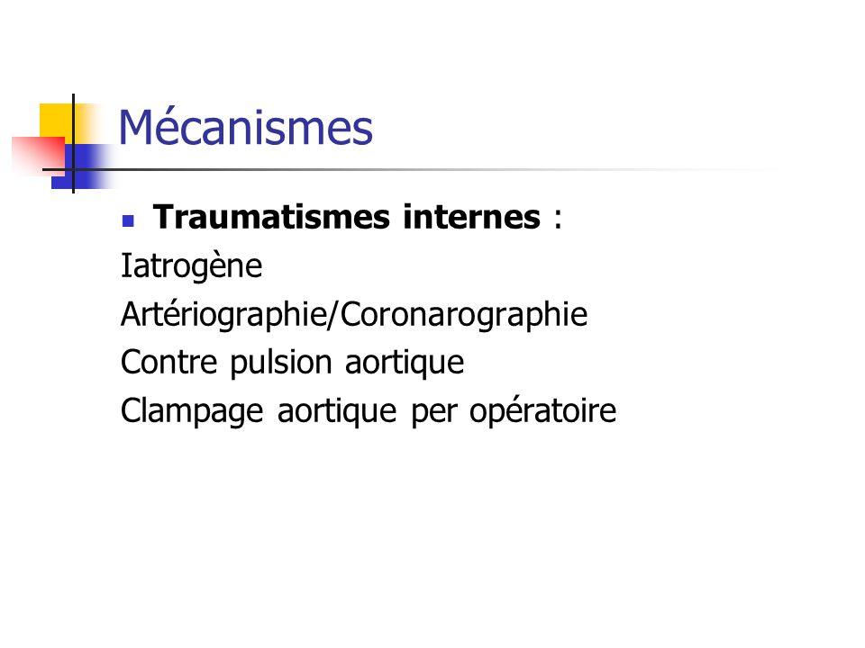 Mécanismes Traumatismes internes : Iatrogène Artériographie/Coronarographie Contre pulsion aortique Clampage aortique per opératoire