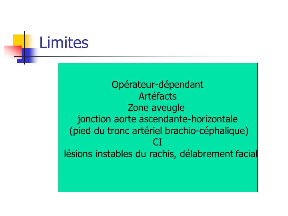 Limites Opérateur-dépendant Artéfacts Zone aveugle jonction aorte ascendante-horizontale (pied du tronc artériel brachio-céphalique) CI lésions instab