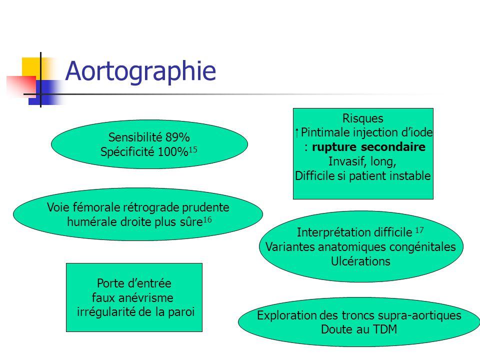Aortographie Voie fémorale rétrograde prudente humérale droite plus sûre 16 Exploration des troncs supra-aortiques Doute au TDM Porte dentrée faux ané