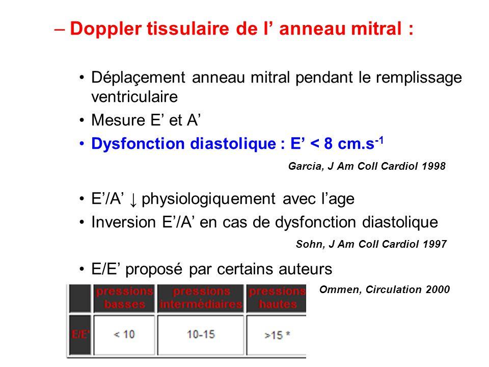 –Doppler tissulaire de l anneau mitral : Déplaçement anneau mitral pendant le remplissage ventriculaire Mesure E et A Dysfonction diastolique : E < 8 cm.s -1 E/A physiologiquement avec lage Inversion E/A en cas de dysfonction diastolique E/E proposé par certains auteurs Garcia, J Am Coll Cardiol 1998 Sohn, J Am Coll Cardiol 1997 Ommen, Circulation 2000