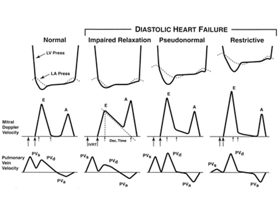 Vieillissement : temps de relaxation isovolumétrique allongé remplissage rapide est retardé et diminué conséquences si perte de la systole auriculaire ou hypovolémie AC/FA = doppler veineux pulmonaire non disponible E/E Plastie ou valve mitrale = flux transmitral non valable FLUX VEINEUX PULMONAIRE Cohen, J Am Coll Cardiol 1996 Fleg, JAMA 1995