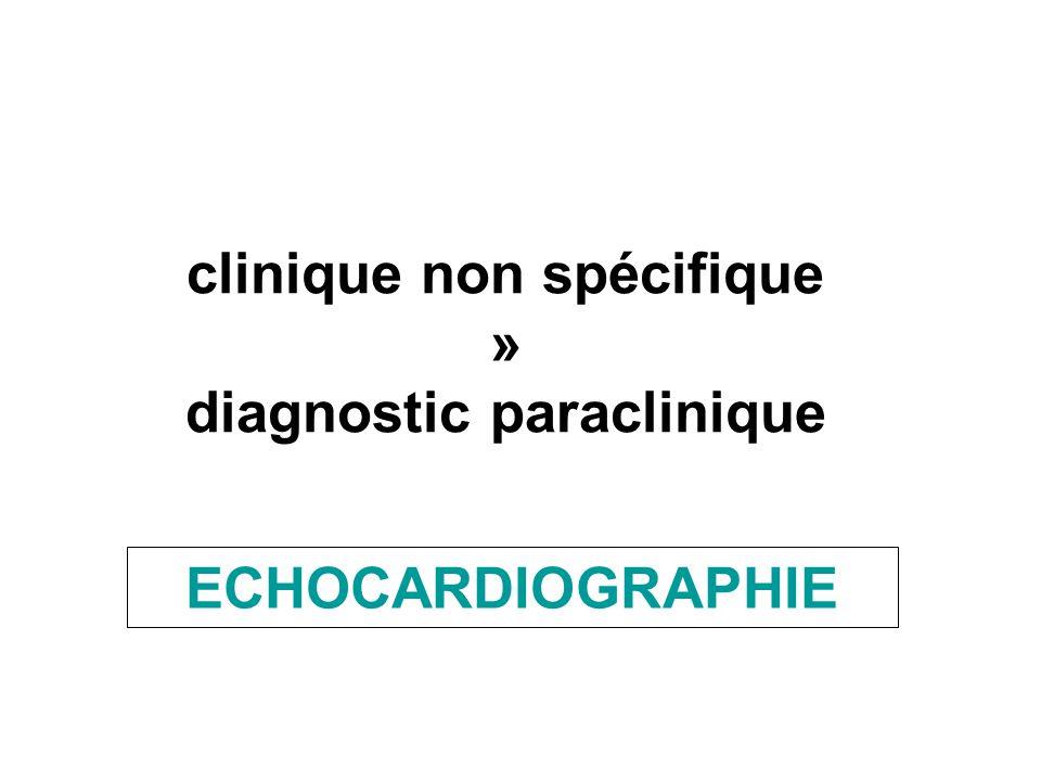 clinique non spécifique » diagnostic paraclinique ECHOCARDIOGRAPHIE