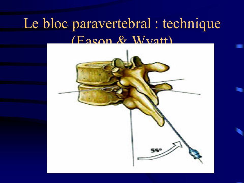 Le bloc interpleural : réalisation Injection dun anesthésique local au travers dun cathéter laissé en place dans lespace interpleural : –Bupivacaine 10-20 cc en bolus – puis 15 cc/6h ou 5 cc/h Clampage du DT pdt 20 min + patient à plat voire en DV Karmakar.