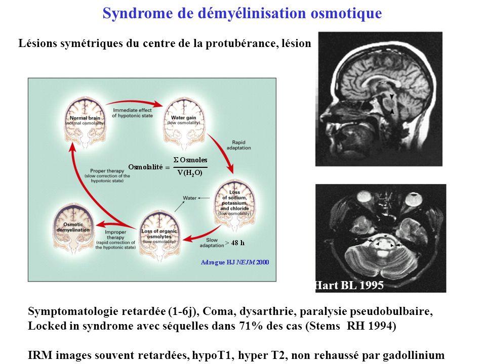 Syndrome de démyélinisation osmotique Symptomatologie retardée (1-6j), Coma, dysarthrie, paralysie pseudobulbaire, Locked in syndrome avec séquelles d
