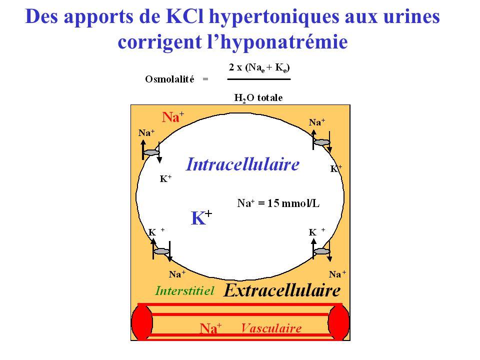 Des apports de KCl hypertoniques aux urines corrigent lhyponatrémie