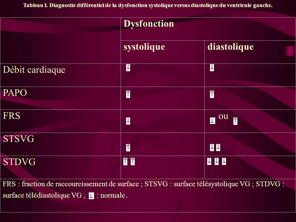 Tableau I. Diagnostic différentiel de la dysfonction systolique versus diastolique du ventricule gauche. Dysfonction systoliquediastolique Débit cardi