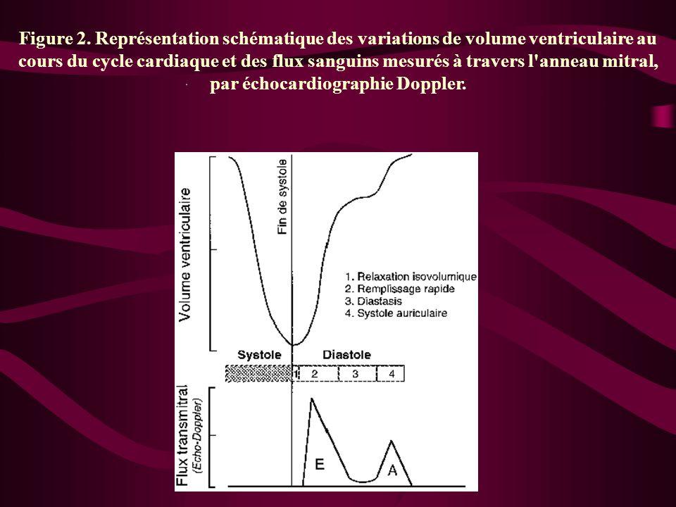 Figure 2. Représentation schématique des variations de volume ventriculaire au cours du cycle cardiaque et des flux sanguins mesurés à travers l'annea
