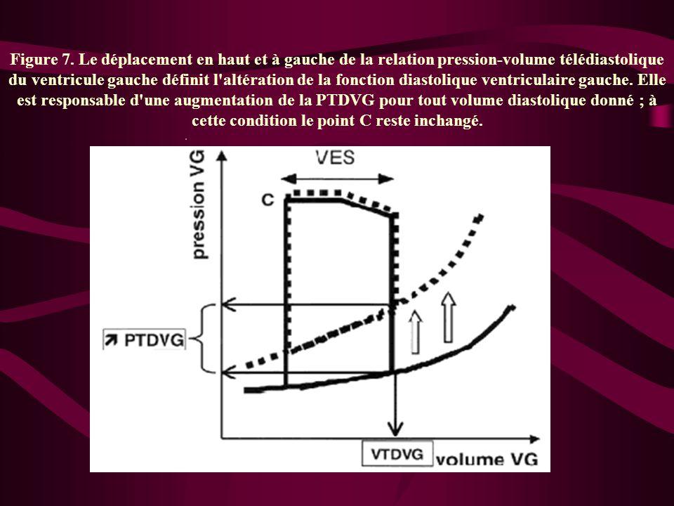 Figure 7. Le déplacement en haut et à gauche de la relation pression-volume télédiastolique du ventricule gauche définit l'altération de la fonction d