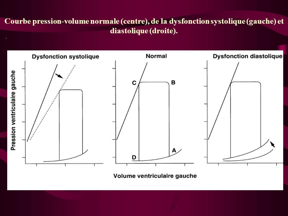 Courbe pression-volume normale (centre), de la dysfonction systolique (gauche) et diastolique (droite).