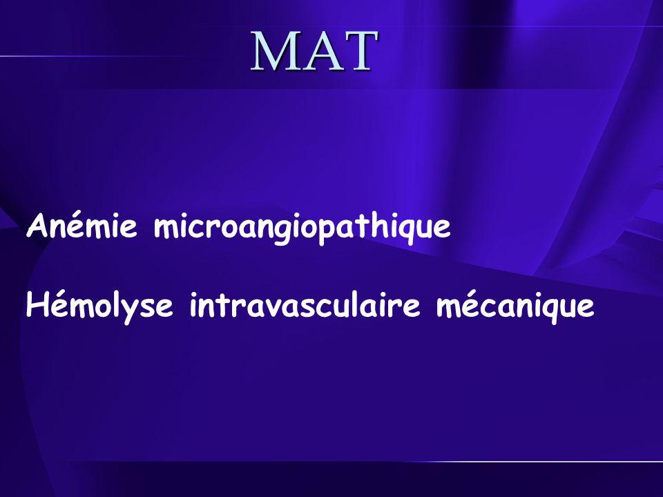 MAT Anémie microangiopathique Hémolyse intravasculaire mécanique