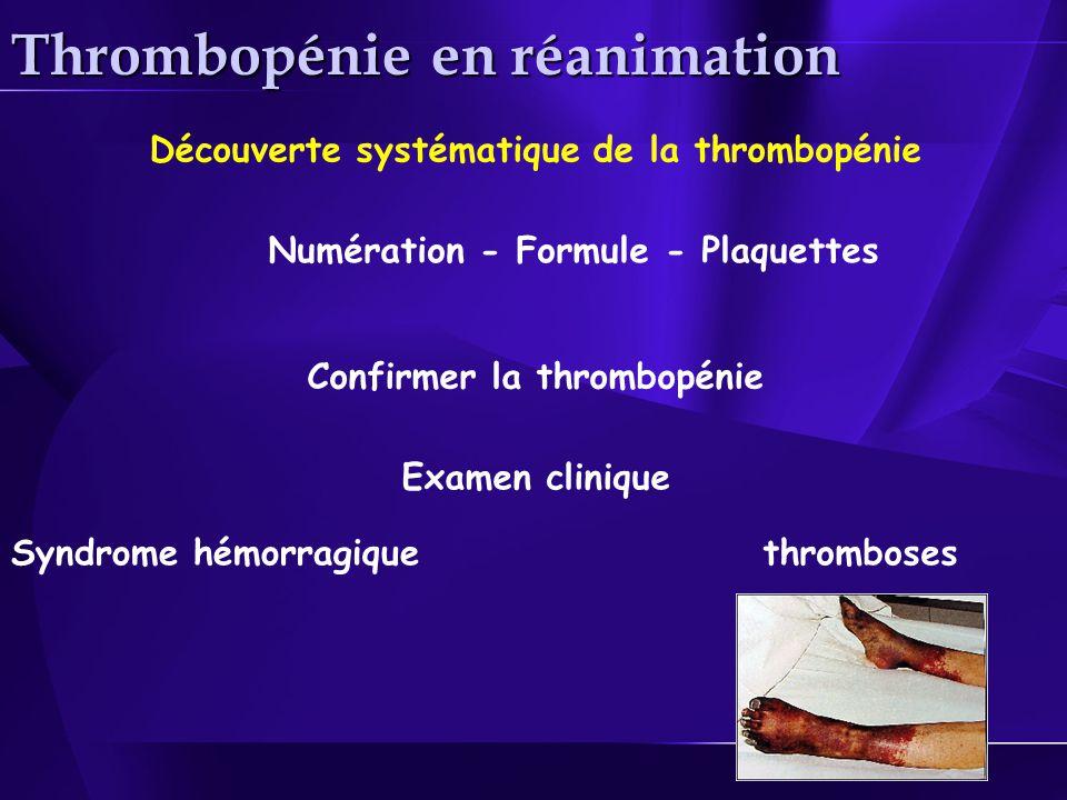 Thrombopénie en réanimation Confirmer la thrombopénie Découverte systématique de la thrombopénie Numération - Formule - Plaquettes Syndrome hémorragique Examen clinique thromboses