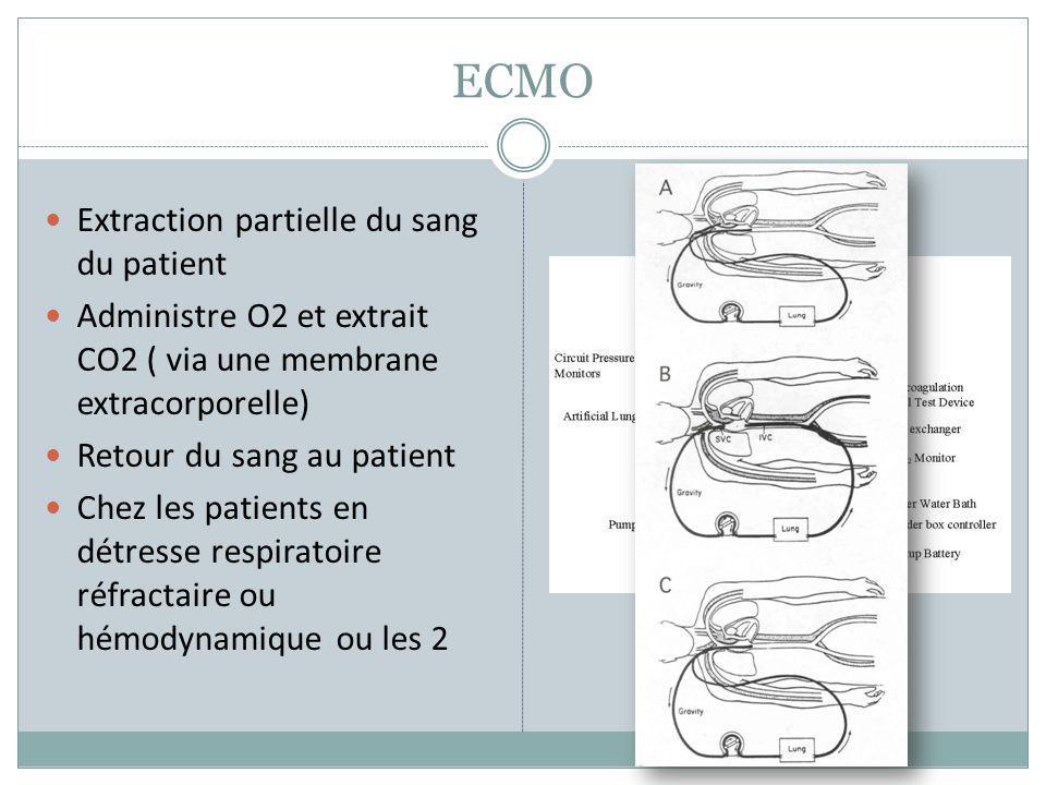 ECMO Extraction partielle du sang du patient Administre O2 et extrait CO2 ( via une membrane extracorporelle) Retour du sang au patient Chez les patie