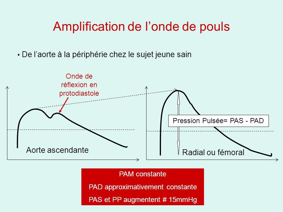 Amplification de londe de pouls Aorte ascendante Radial ou fémoral De laorte à la périphérie chez le sujet jeune sain Onde de réflexion en protodiastole Pression Pulsée= PAS - PAD PAM constante PAD approximativement constante PAS et PP augmentent # 15mmHg